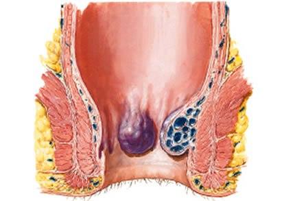 como curar las hemorroides internas