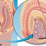 Cáncer Testicular. Causas, Síntomas y Tratamiento