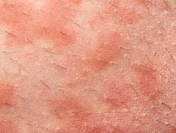irritación de los genitales por eccema-folicular